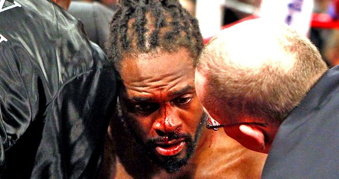 Audley Harrison: Had his nose smashed in his brutal defeat to David Price