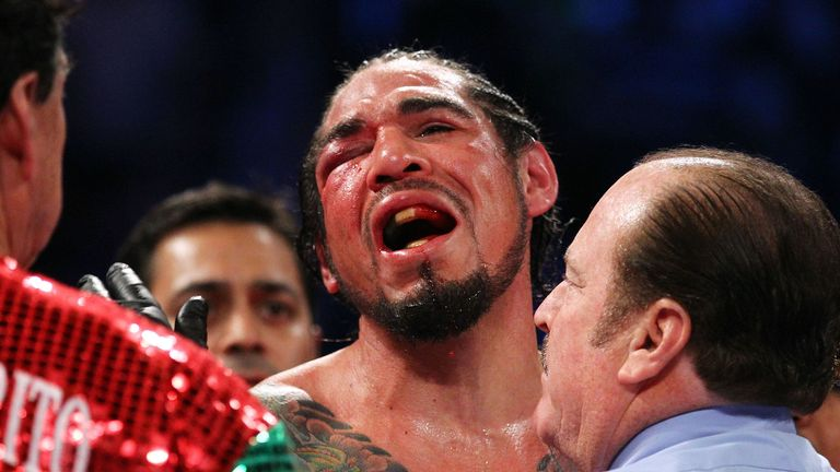 The second time around it was the right eye and Margarito that suffered