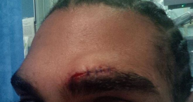 David Haye: Needed six stitches in the cut that have put paid to his fight with Tyson Fury
