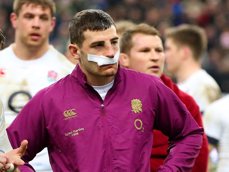 Jonny May: Broken nose