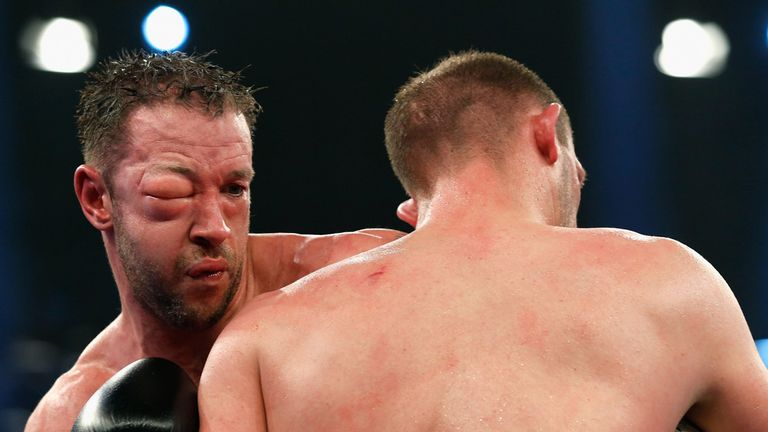 Enzo Maccarinelli's swollen eye ultimately ended his title challenge