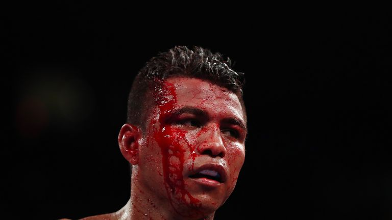Gonzalez suffered a nasty cut during his bout with Sor Rungvisai