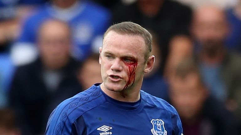 Wayne Rooney was caught by a stray arm from Simon Francis