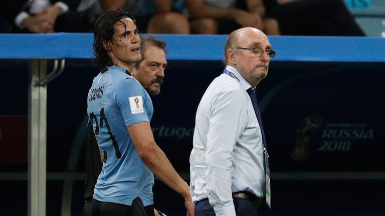 Edinson Cavani went off with a calf injury in the second half of Uruguay's 2-1 win over Portugal