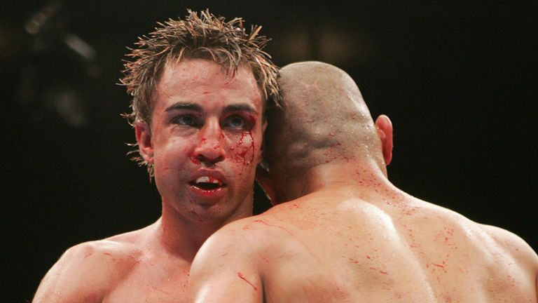 Paulie Malignaggi's face was baldy damaged by Miguel Cotto