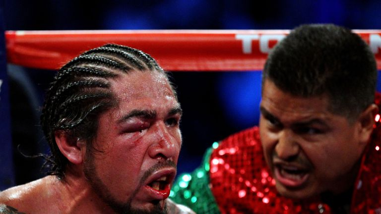Antonio Margarito has a history of problems with his right eye
