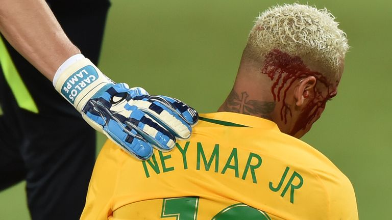 Brazil's Neymar bleeds after being injured in the face during the Russia 2018 World Cup football qualifier match against Bolivia in Natal, Brazil, on Octob