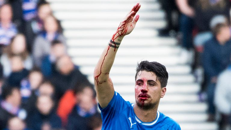 Rangers' Fabio Cardoso was left bloodied after a clash with Motherwell's Ryan Bowman