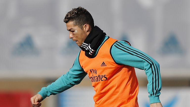 Ronaldo is seen with a black eye during a Real Madrid training session