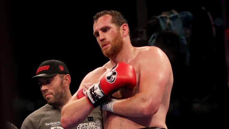 David Price holds his right arm after the fight