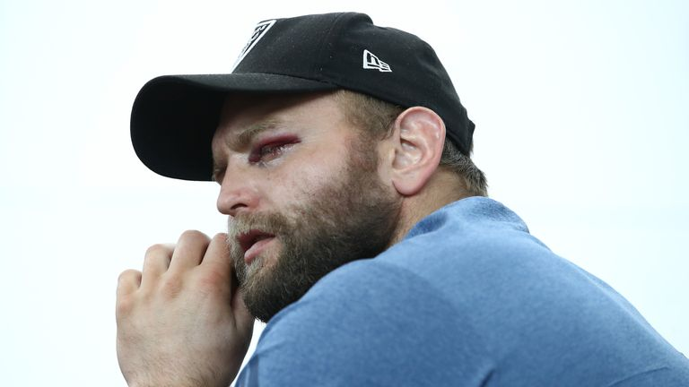 The gruesome injury rules Joe Moody out of New Zealand's remaining Tests in Europe