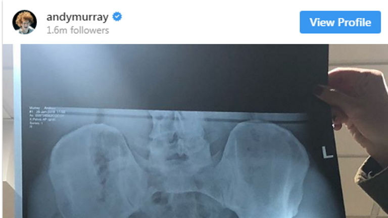 The X-ray shows Murray's new metal hip (via @andymurray on Instagram)