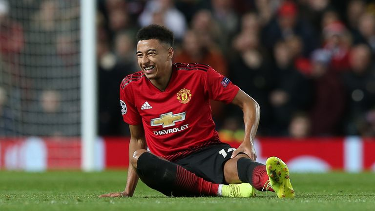 Jesse Lingard suffered an injury against PSG
