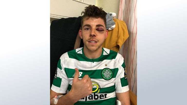 Celtic's Ryan Christie posted this image to his Instagram account (image: Instagram/ryanchristie2)