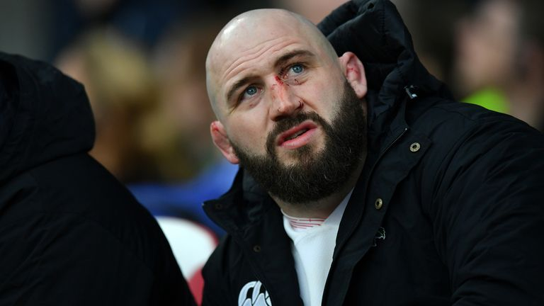 Joe Marler was cited for a bizarre off the ball incident where he pulled the genitals of Wales captain Alun Wyn Jones