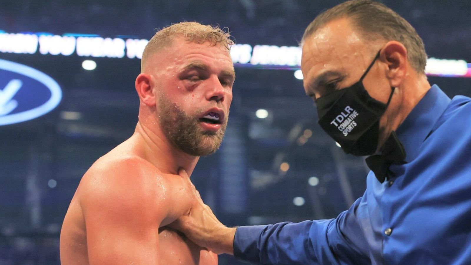 Billy Joe Saunders: Boxer plans to return after suffering broken eye socket