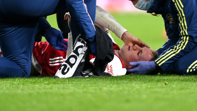 Arsenal's Rob Holding receives treatment before being concussion substituted during the Premier League match at the Emirates Stadium, London. Picture date: Sunday February 21, 2021.