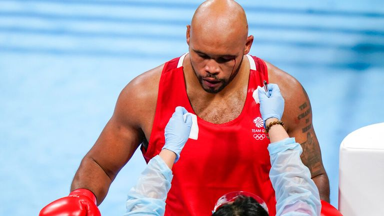 A medical professional checks a cut on Britain's Frazer Clarke during a men...s super heavyweight over 91-kg boxing match against Eliad Mourad, of France, at the 2020 Summer Olympics, Sunday, Aug. 1, 2021, in Tokyo, Japan. (AP Photo/Frank Franklin II)